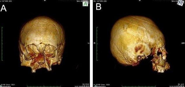 Misshapen skulls found in Croatia News-deformed-skull-2